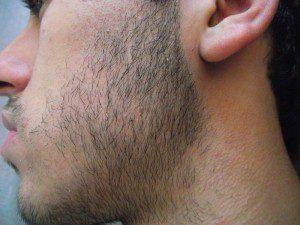 sakal çıkarma yöntemleri